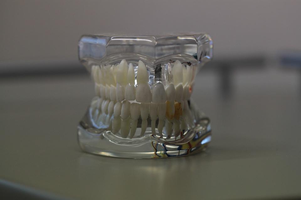 Dentistry 668214 960 720